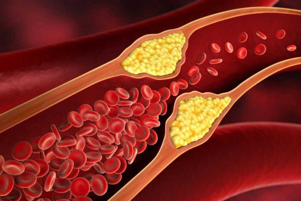 Nigellive Kolesterol, sumber